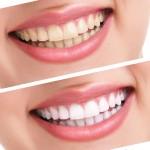wybielanie zębów - sposoby