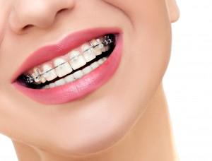 stomatolog - ortodoncja